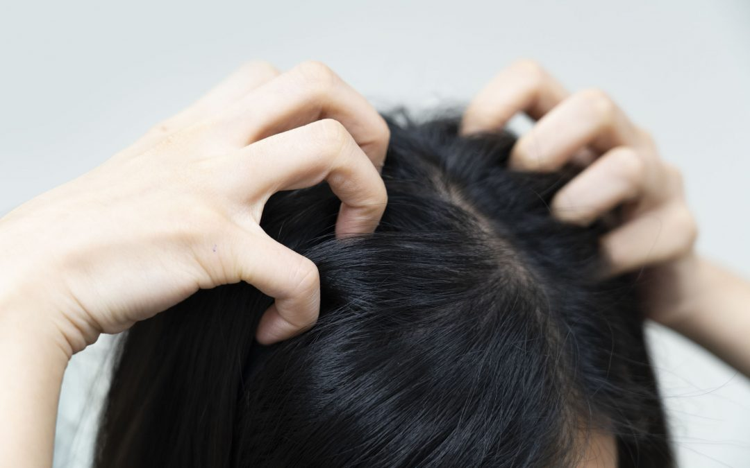The Best Home Remedies for a Dry, Itchy Scalp
