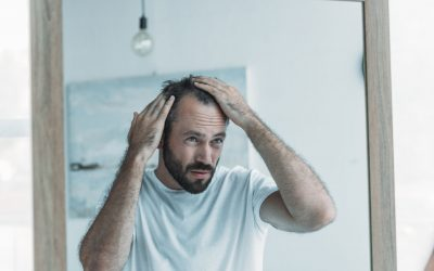Male Pattern Baldness Stages – Detection and Treatment