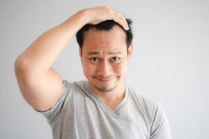 male pattern baldness stages   JuveTress