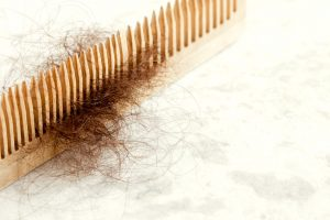 why does my hair shed so much | JuveTress