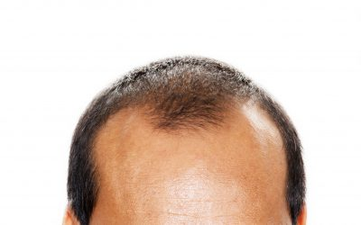 Mature Hairline vs Balding: The Quick Facts