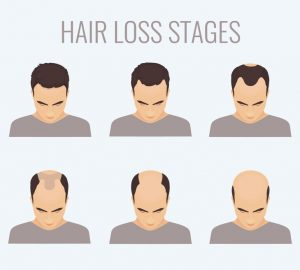 signs of balding | JuveTress