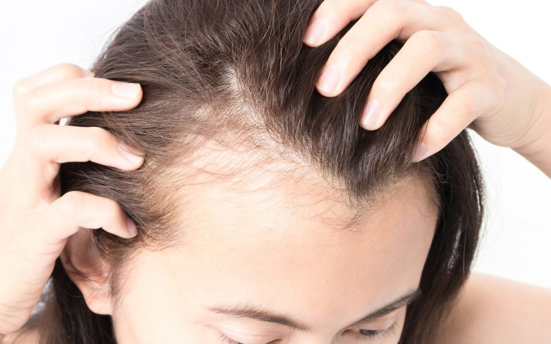 Receding Hairline in Women – Causes, Prevention, and Treatment