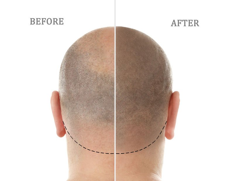 Scalp Tattoo for Baldness – Is it a Good Choice for Me?