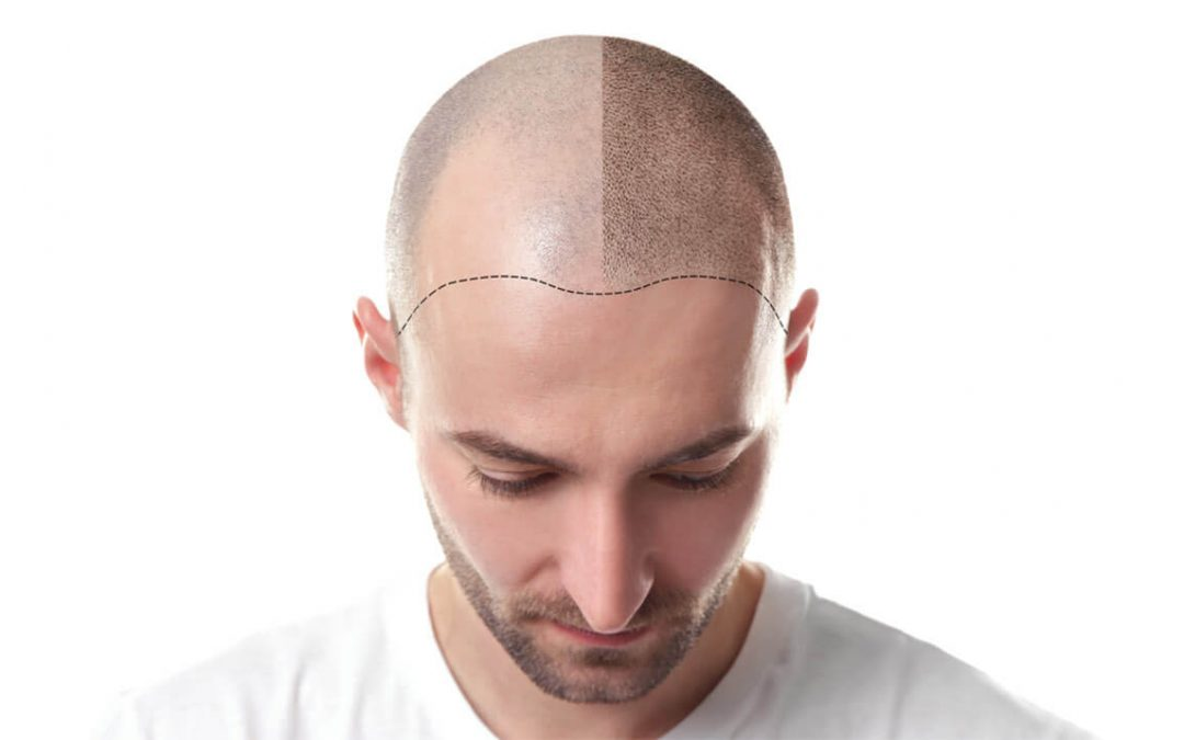 The Essential Guide to Scalp Micropigmentation