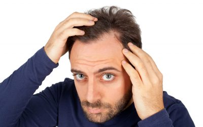 Receding Hairline: How To Identify The Stages